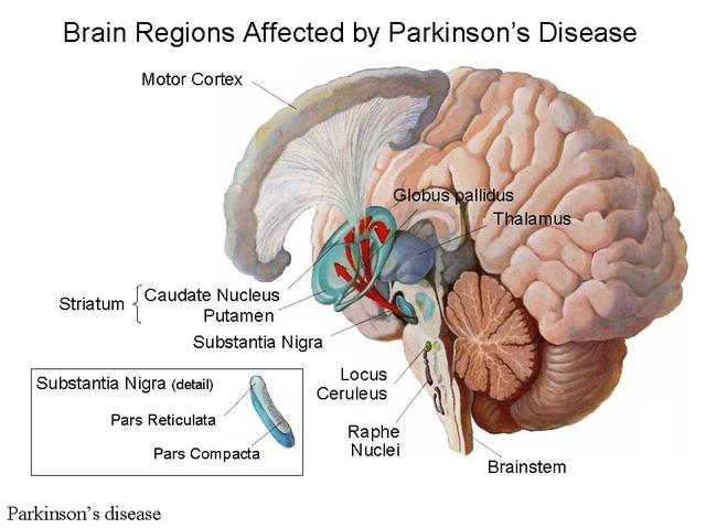 Beyond The Shakes Brain Pathology Of Parkinson S Disease